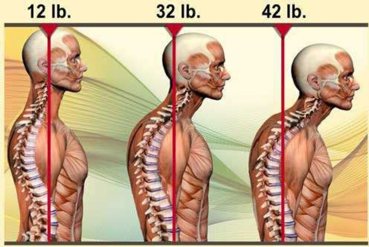 Weight of the human head with proper posture in comparison to improper posture in a colorful diagram