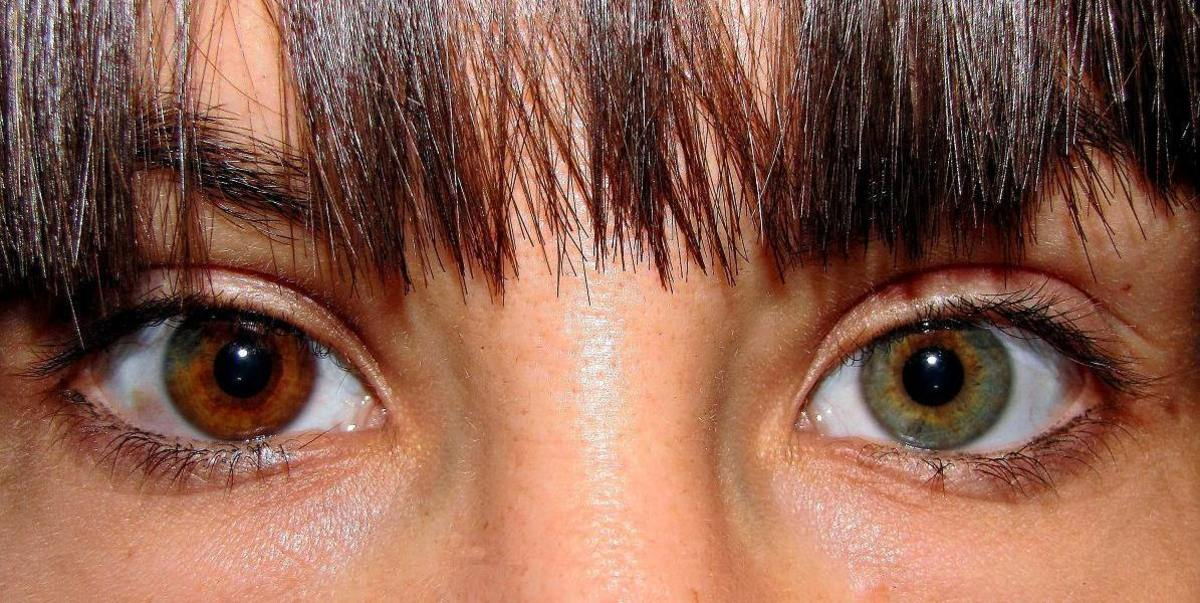 Heterochromia in the iris of one eye