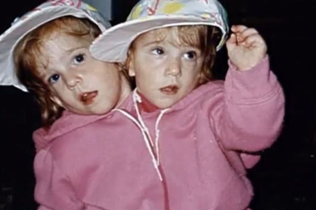 Abby and Brittany as toddlers