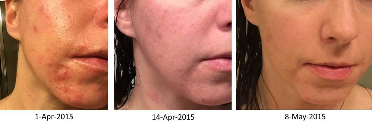 How I Cured My Seborrheic Dermatitis Acne