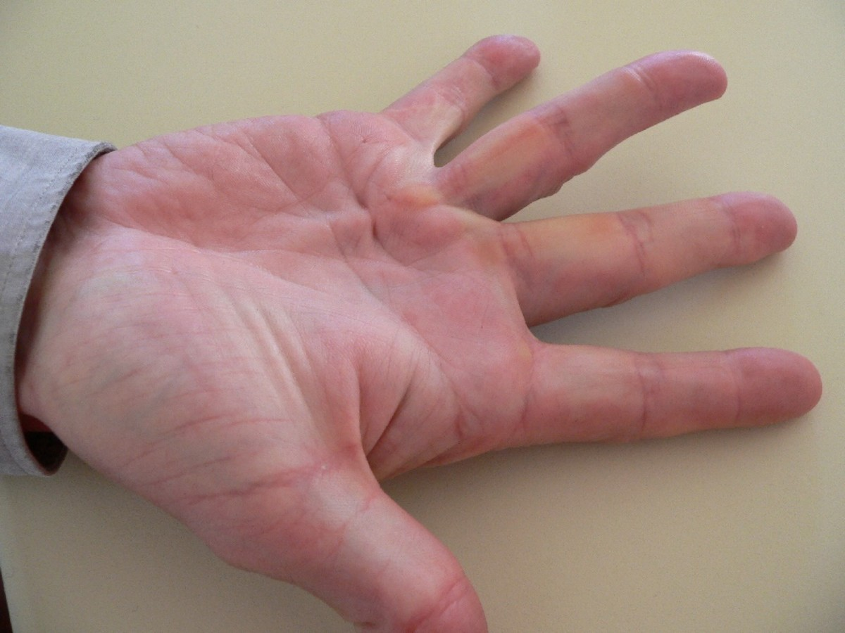 Dupuytren's Contracture - Home Management and Exercises - Part 1