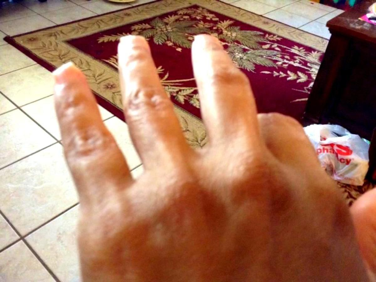 Fingers stiffened due to neuropathy issues
