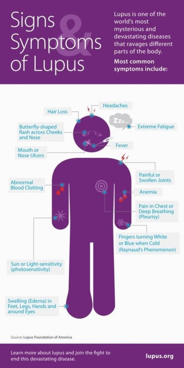 facing-the-giant-my-lupus-diagnosis