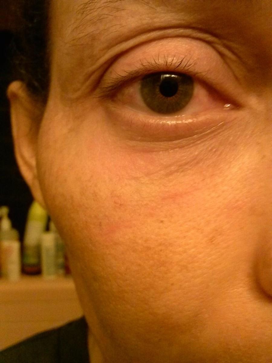 Lupus rash under and around my eye
