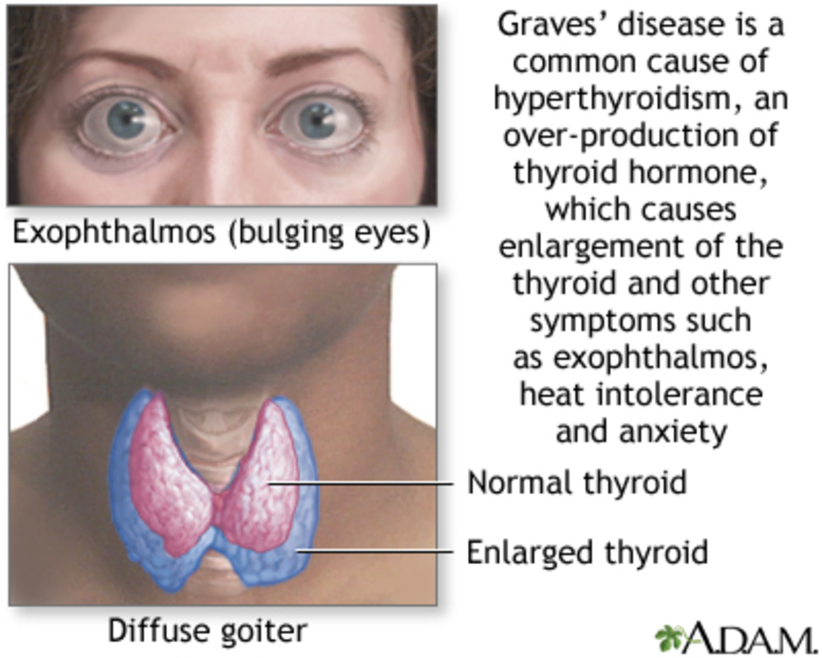 graves-disease-mthfr-and-thyroid-issues