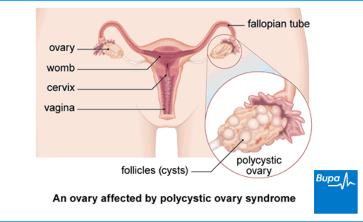 Ovary with cyst