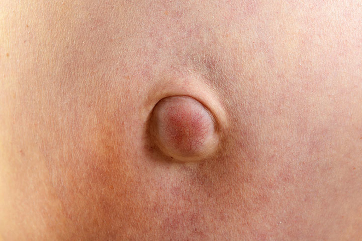umbilical-hernia-and-how-to-repair-it