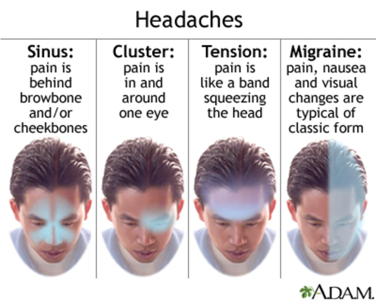 Migraine toward the rear of head - Area, Causes and Treatment