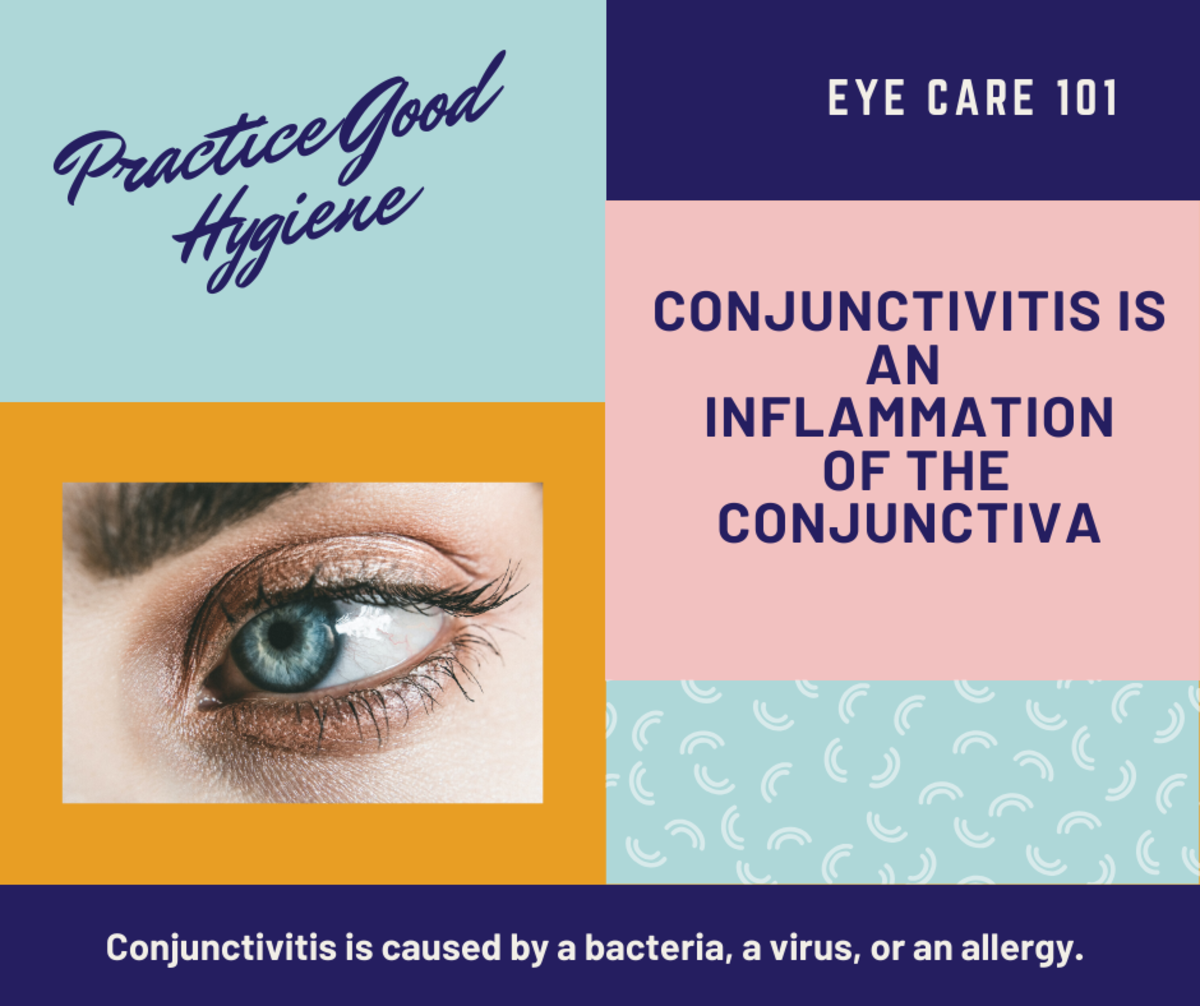 How to Treat the Symptoms Caused By All Types of Conjunctivitis