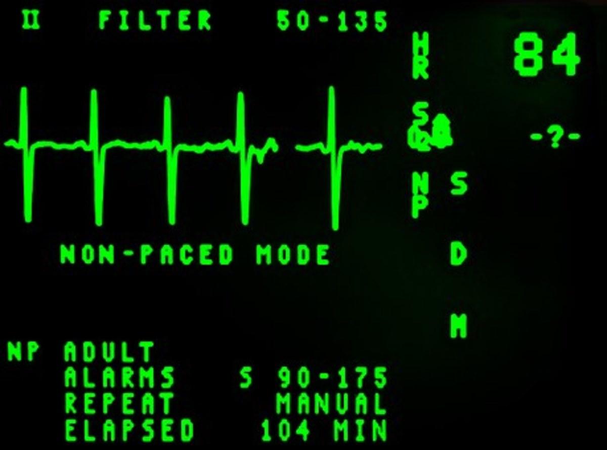 Monitor screen of electrocardiagram machine.