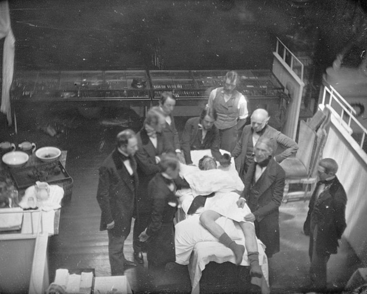 Re-enactment of the first public demonstration of general anesthesia by William T. G. Morton on October 16, 1846 in the Ether Dome at Massachusetts General Hospital, Boston. Surgeons John Collins Warren and Henry Jacob Bigelow are included in this da