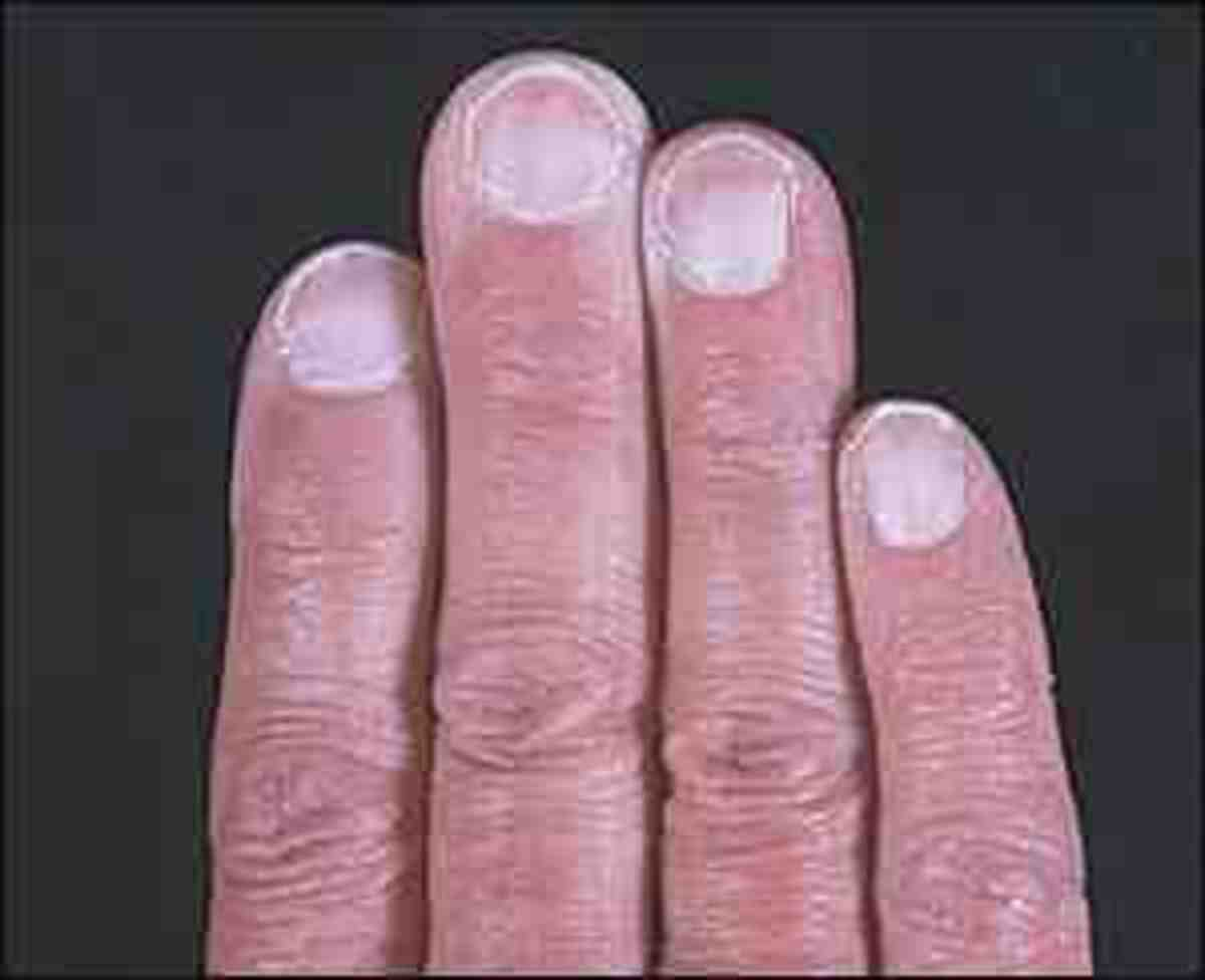 Pale Fingernails show anaemia too!