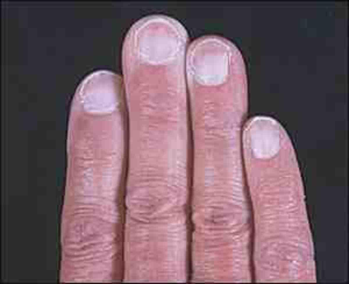 Pale Fingernails show anaemia too!