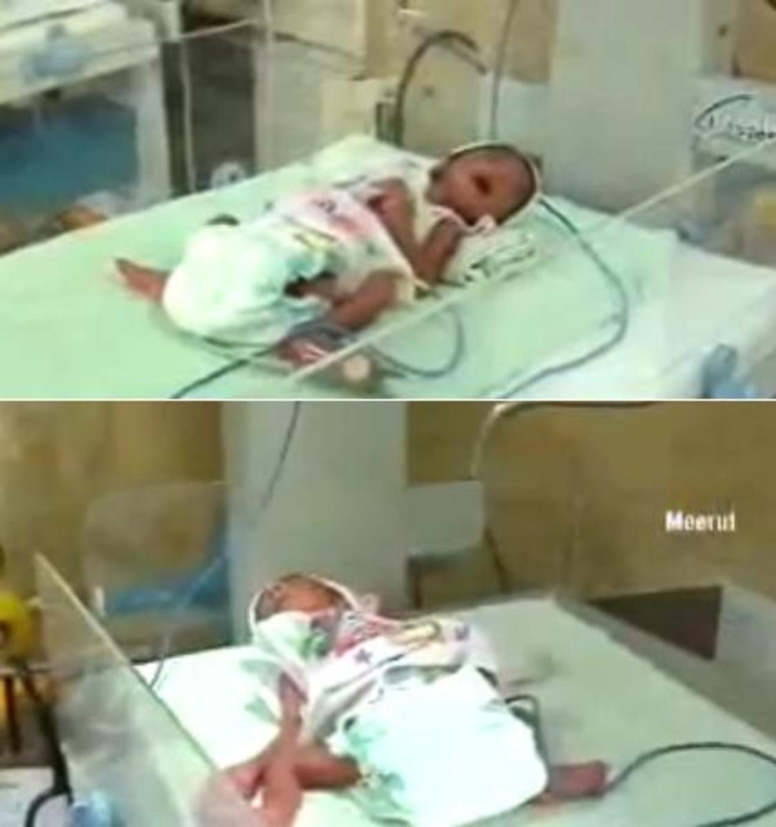 70-year-old woman give birth to twins