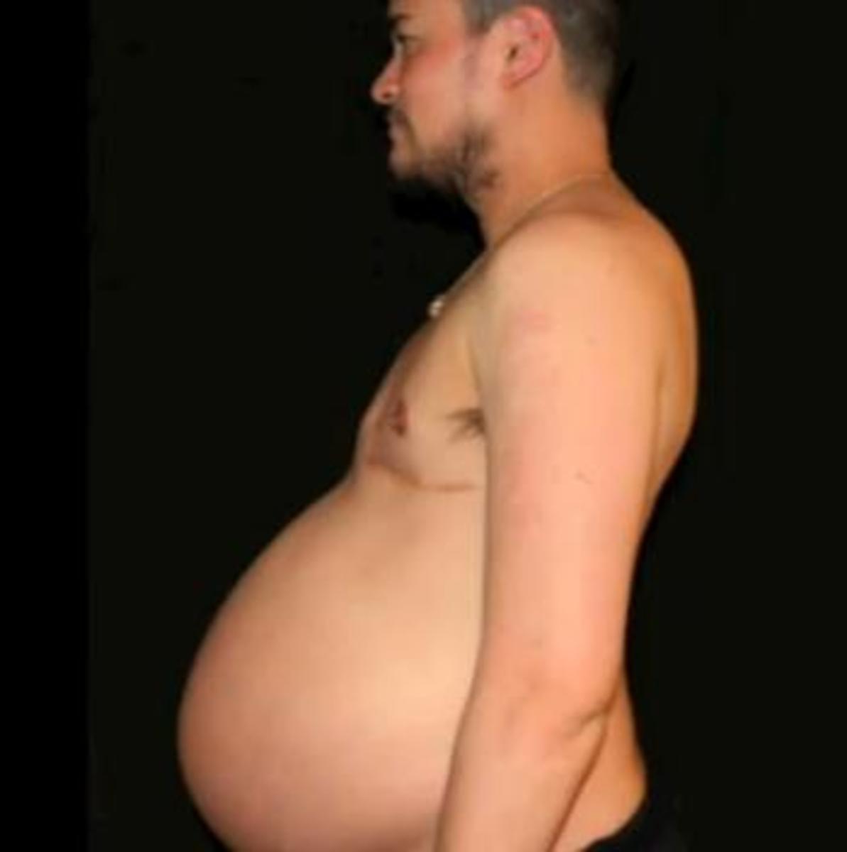 World's first pregnant man