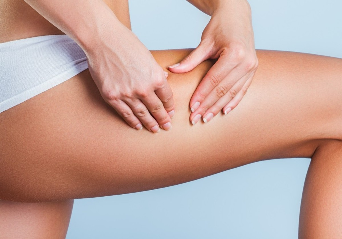 Best Natural  Ways Treat Cellulite in One Month