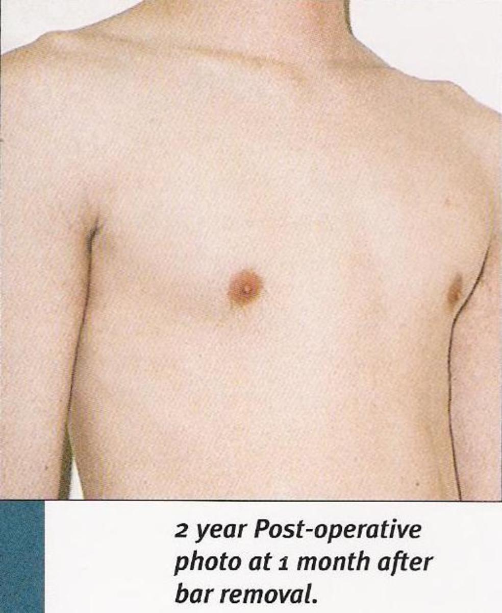 pectus-excavatum-surgery-introduction
