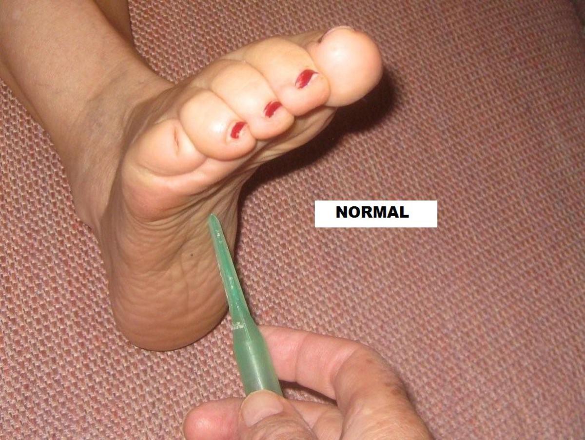 Normal Reflex
