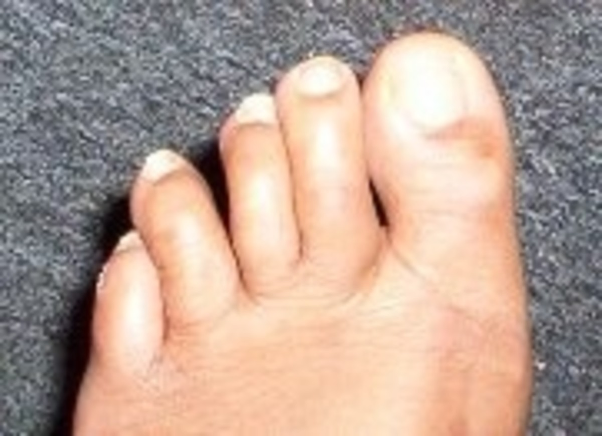 """I broke my toe . . ."""