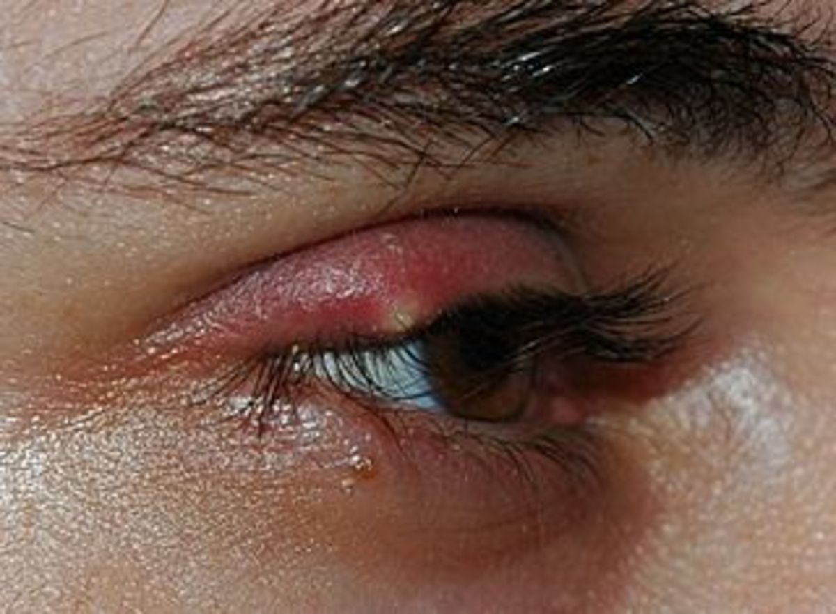 How To Get Rid Of A Stye Quickly