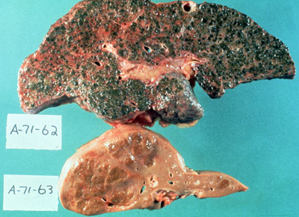 The dangers of alcohol. (top) A liver from an alcoholic and (bottom) a liver from an abstainer.