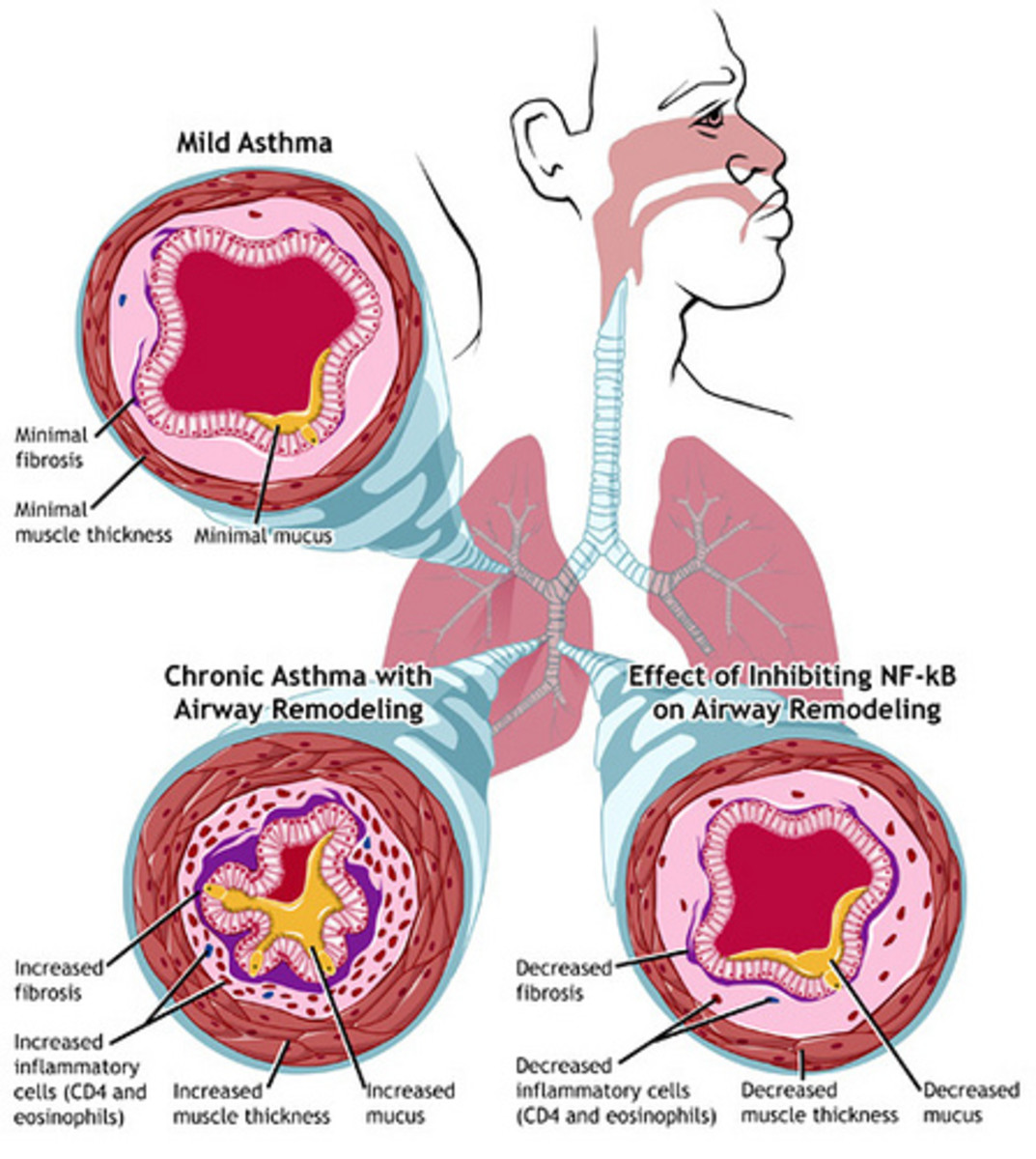 Asthma sufferers have trouble breathing because of the narrowing of the airways in their lungs, an example of which is shown in the upper left. In chronic asthma (lower left), repeated cycles of inflammation, damage, and repair lead to airway remodel