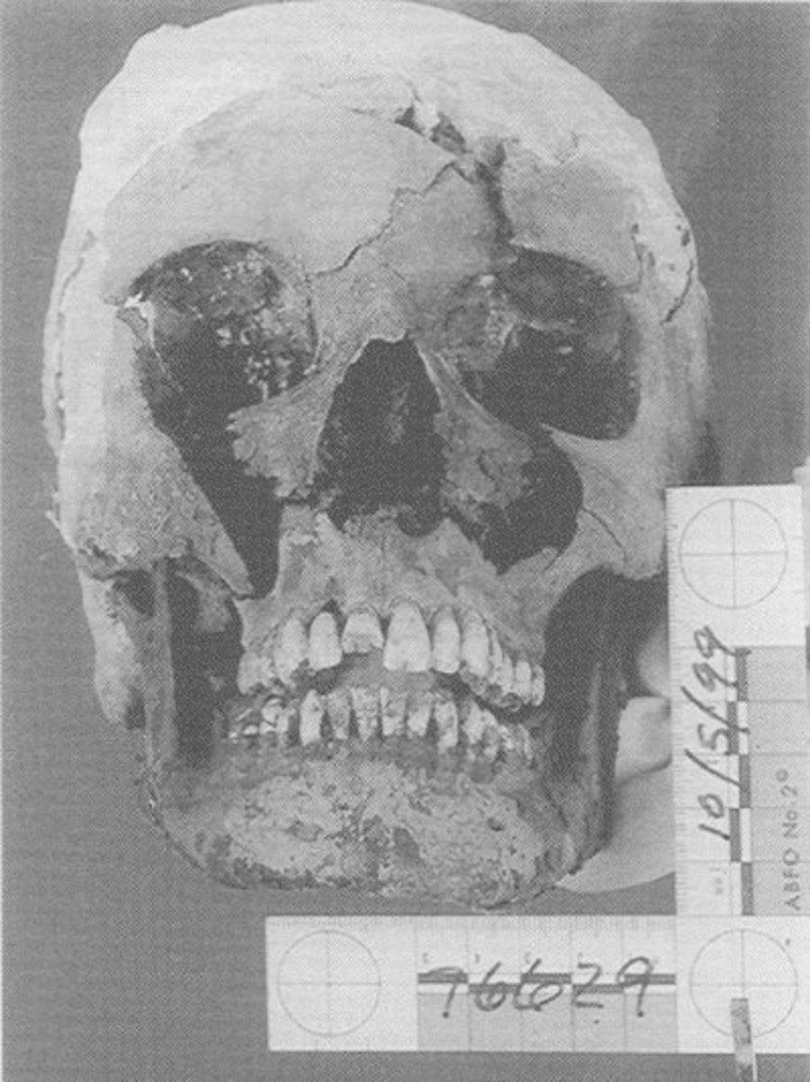 Marilyn's Skull.