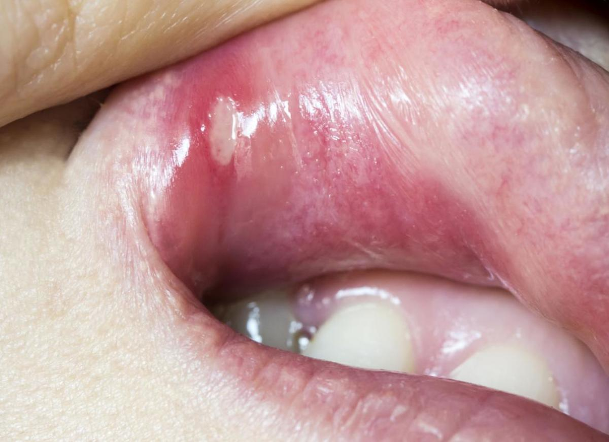 What You Need to Know About Cold Sores Vs. Canker Sores (Mouth Ulcers)