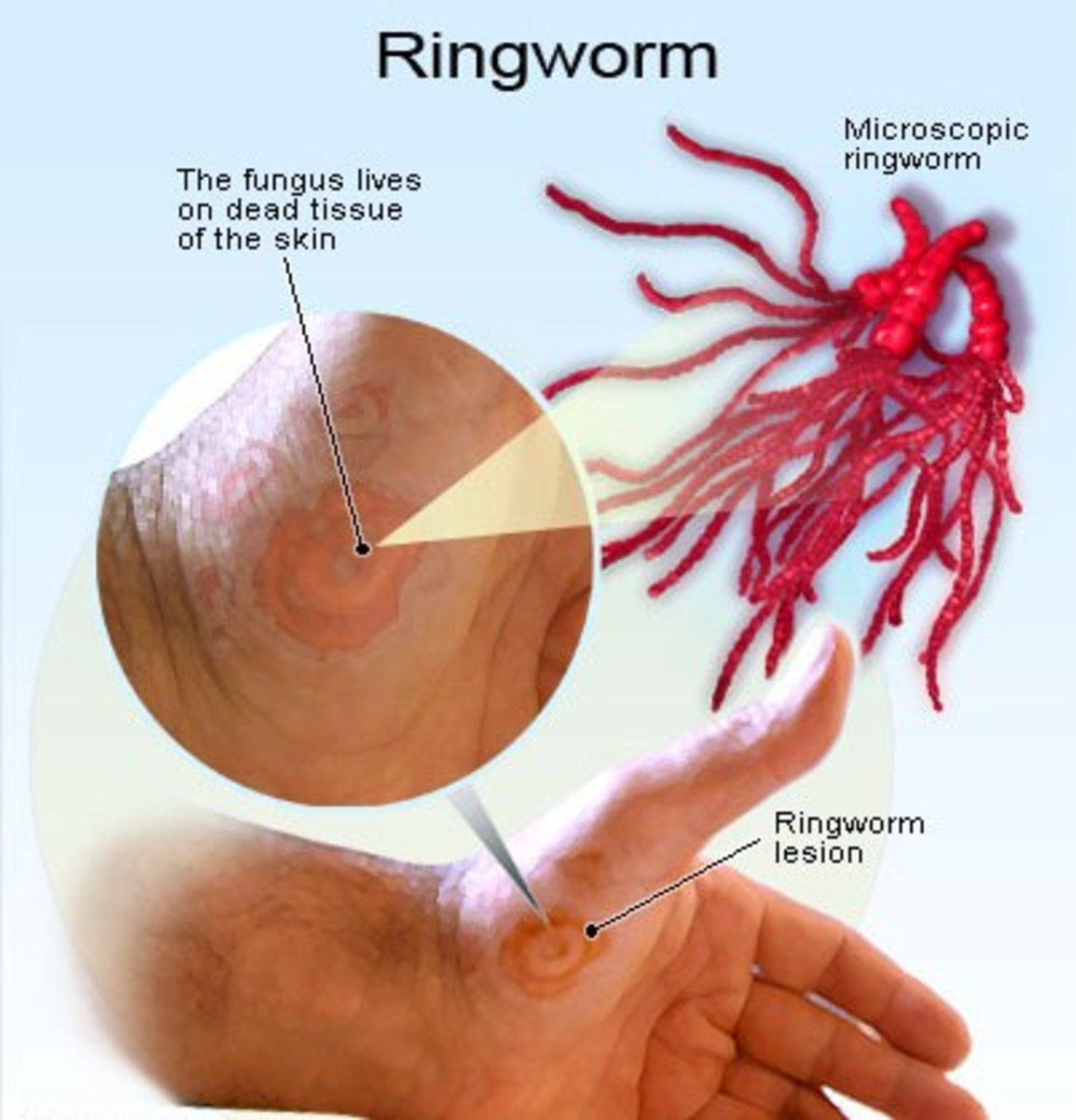Ringworm is not a parasitic worm, it is a fungus that feeds on dead skin tissues.