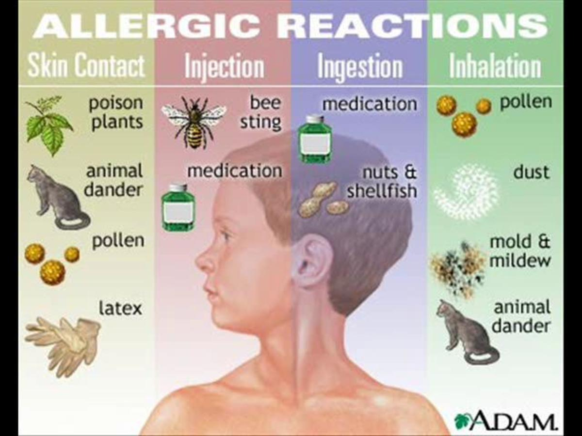 Some common allergens that lead to or worsen your allergic condition.