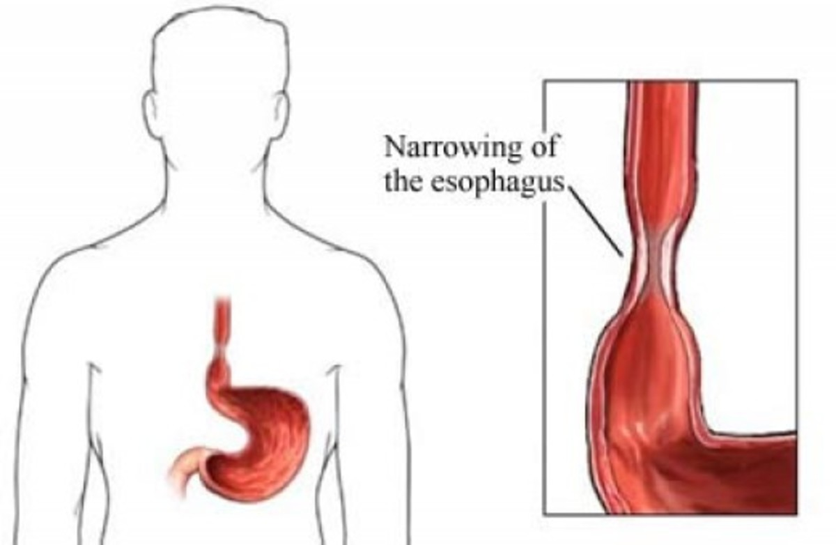 Oesophageal Stricture Health Implication: The Story Of Chief Mr. Olivier Chukwuemeka From Enugu, Nigeria