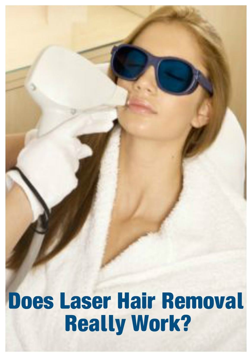 Does Laser Hair Removal Work on the Face and Body?