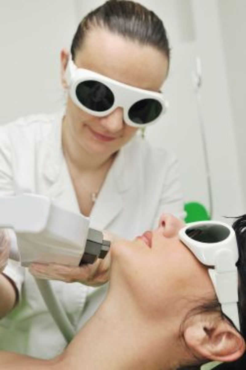 Removing Facial Hair with Laser Treatment