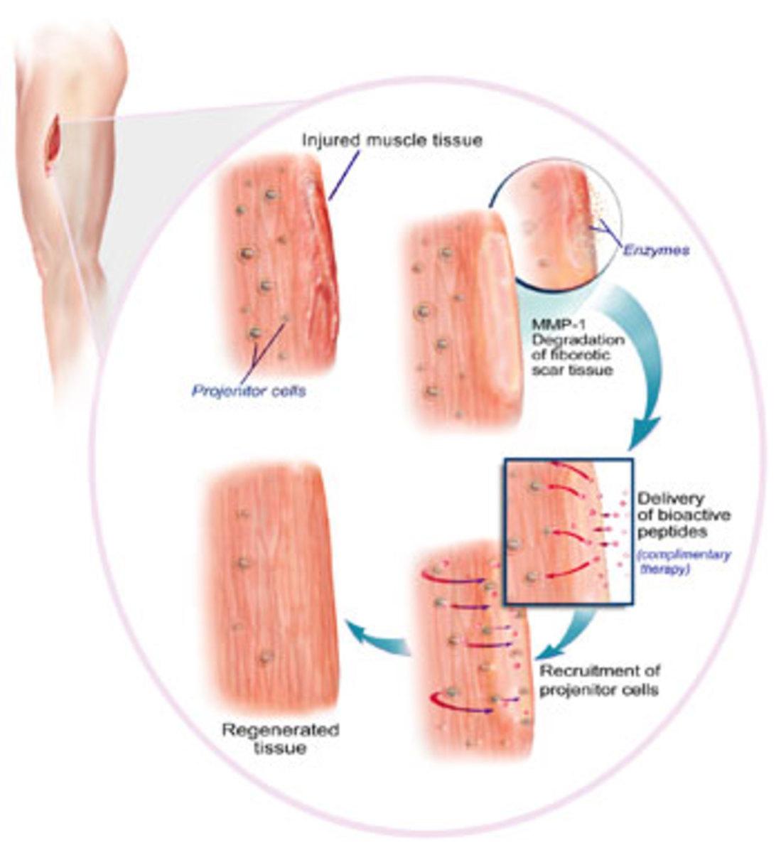 Serrapeptase for scars