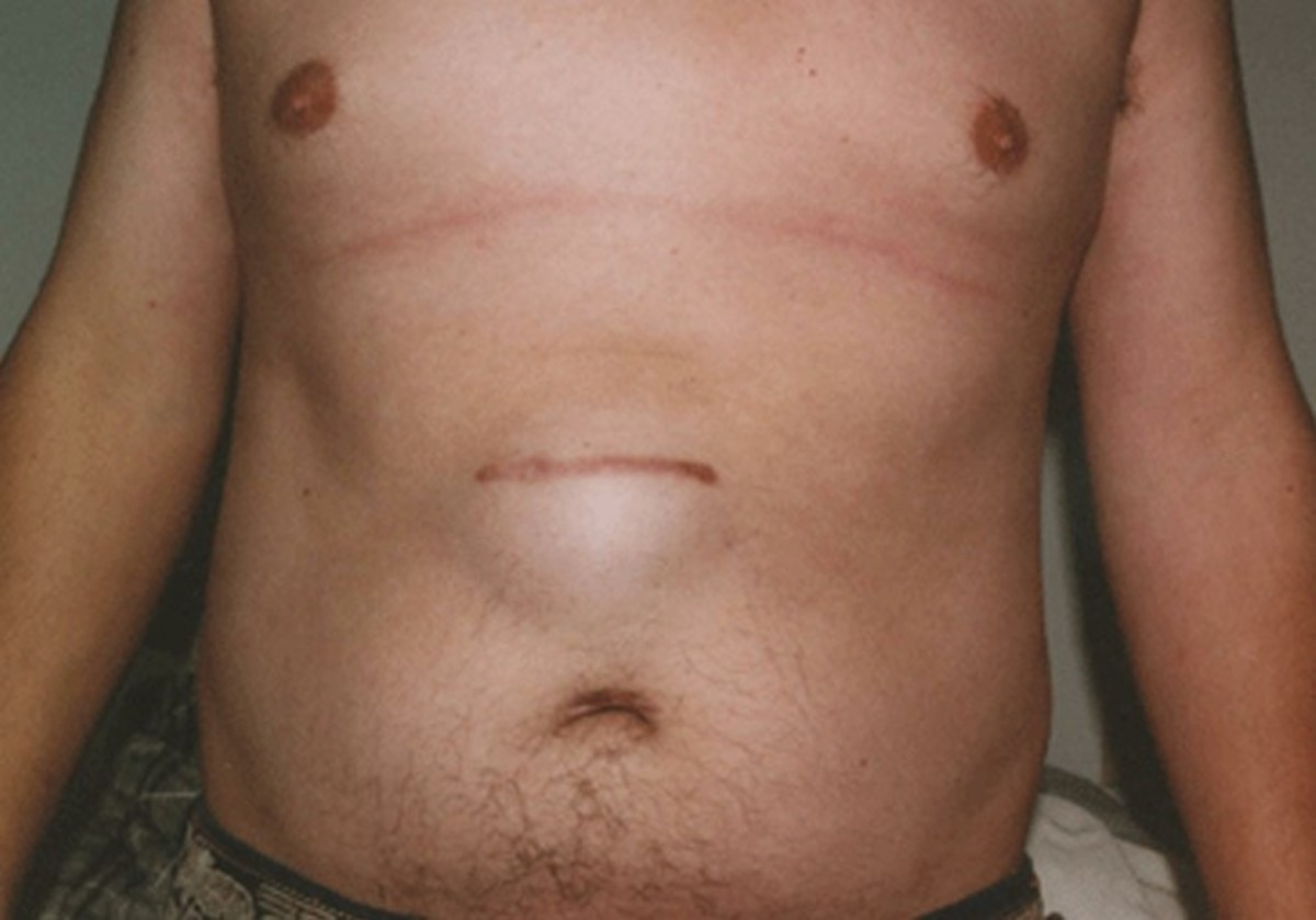 Incisional Hernia Pictures Repair Complications Symptoms Treatment Hubpages