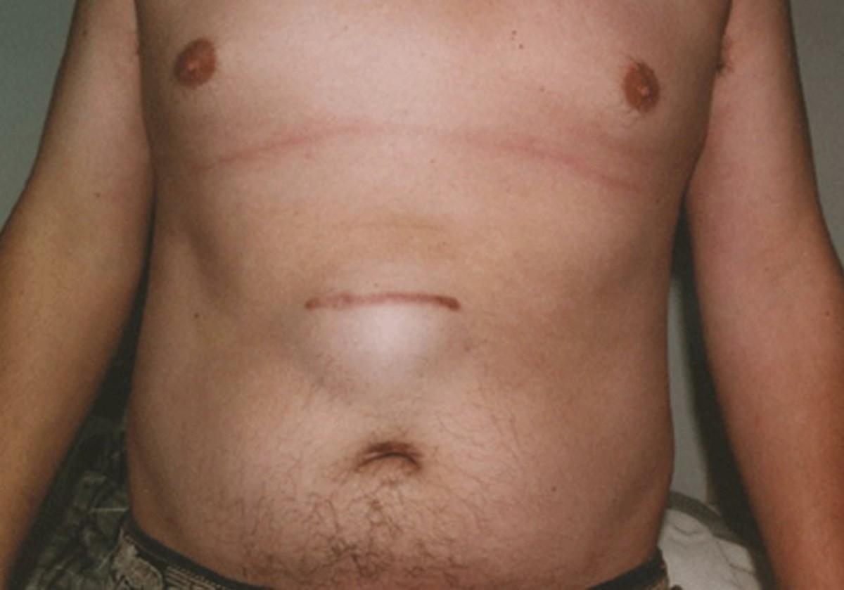 incisional-hernia