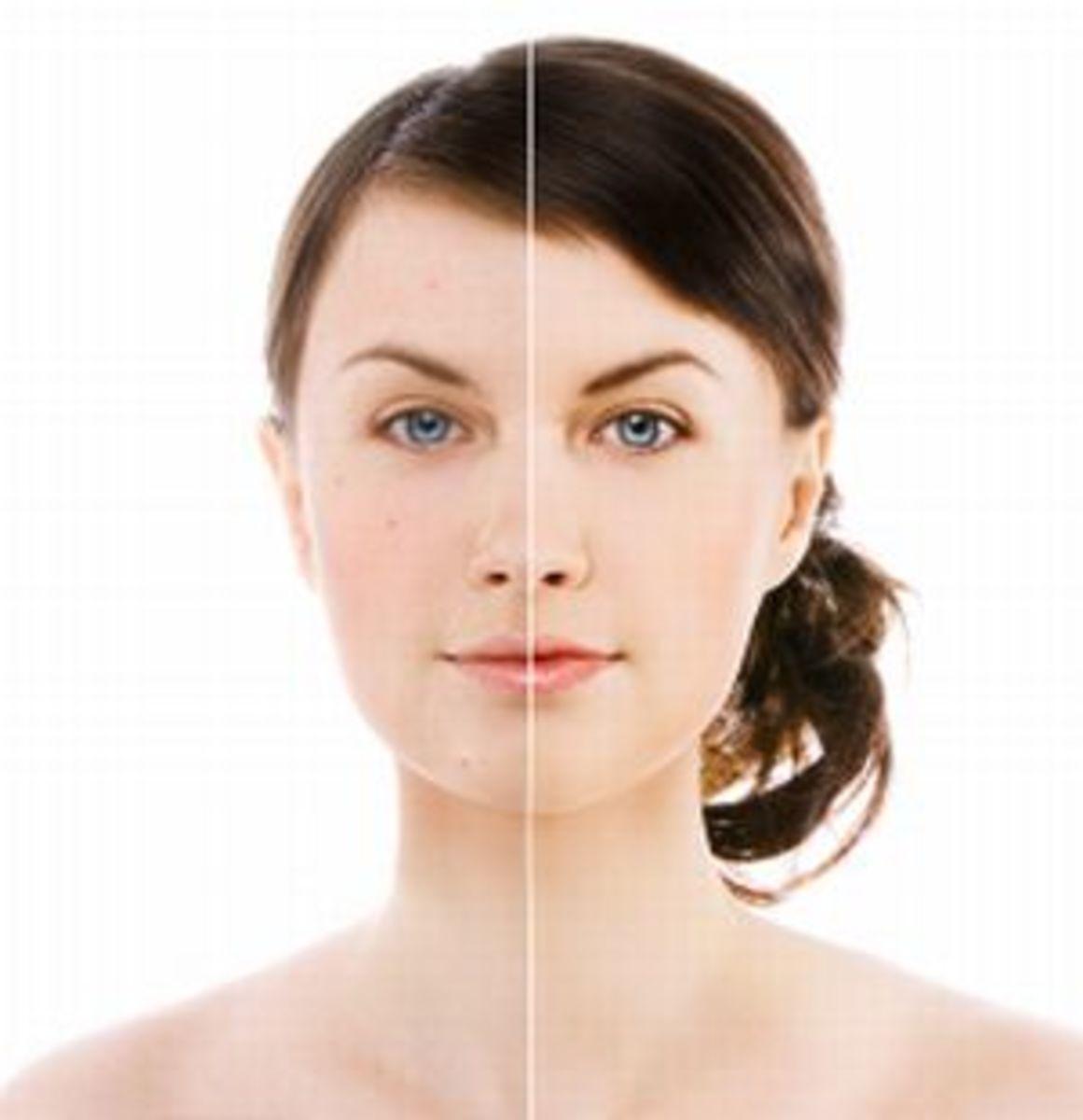 Improving Oily Skin