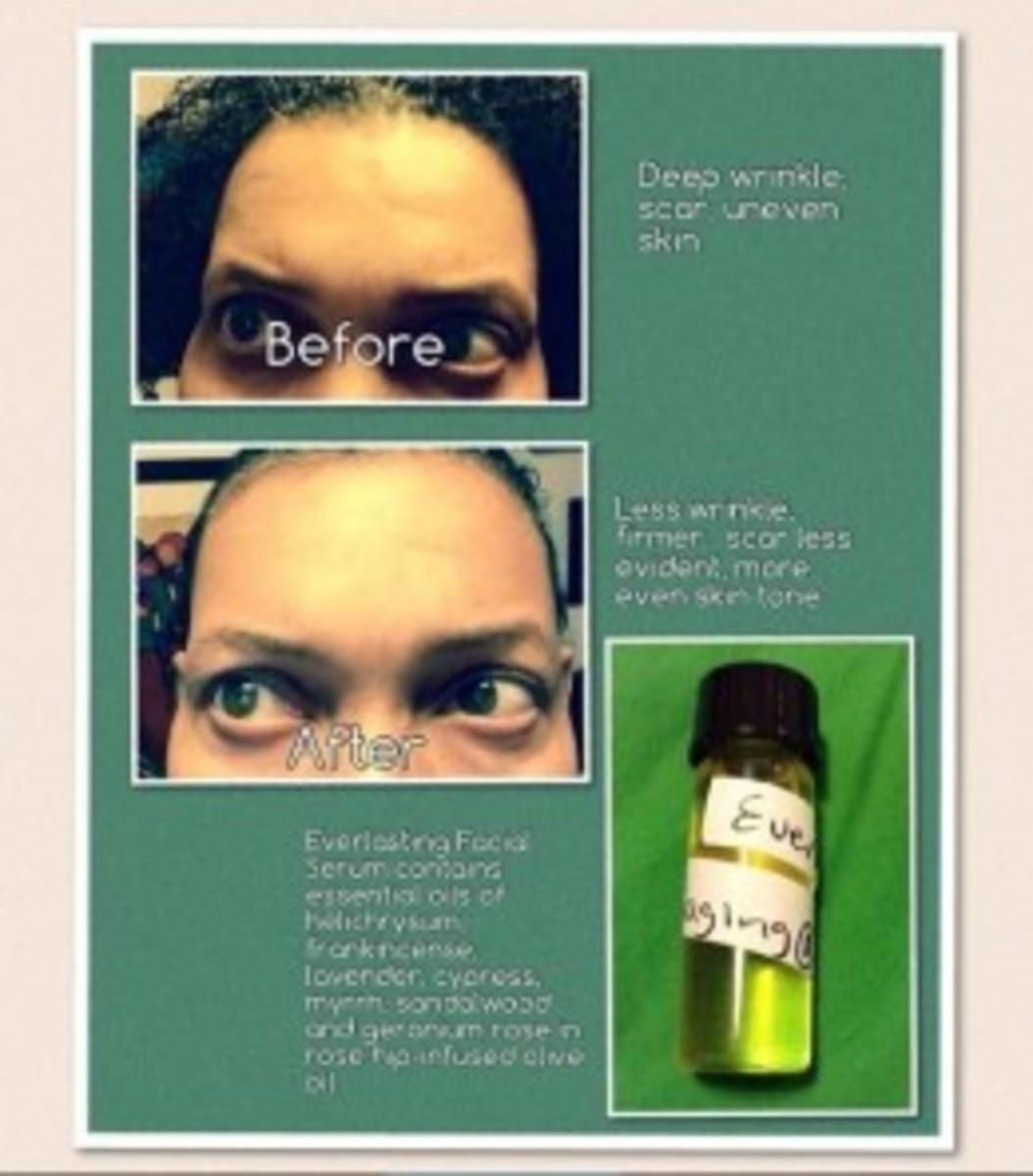 My essential oil blend for my face.....I use this daily.
