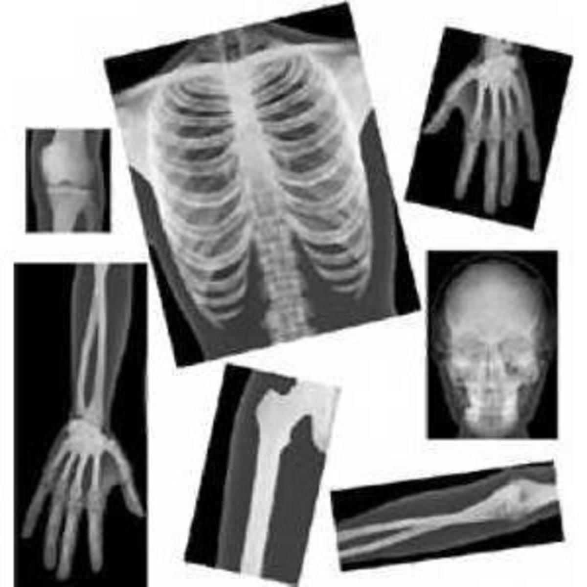 Skeleton X-Rays