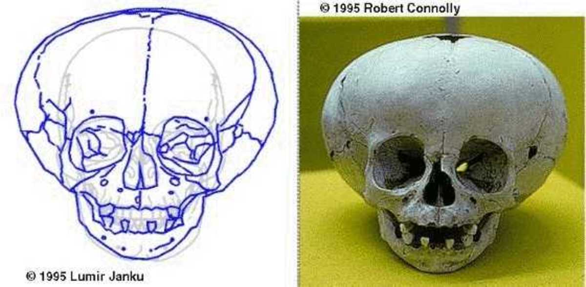 1995, Robert Connelly      Fat Head Skull