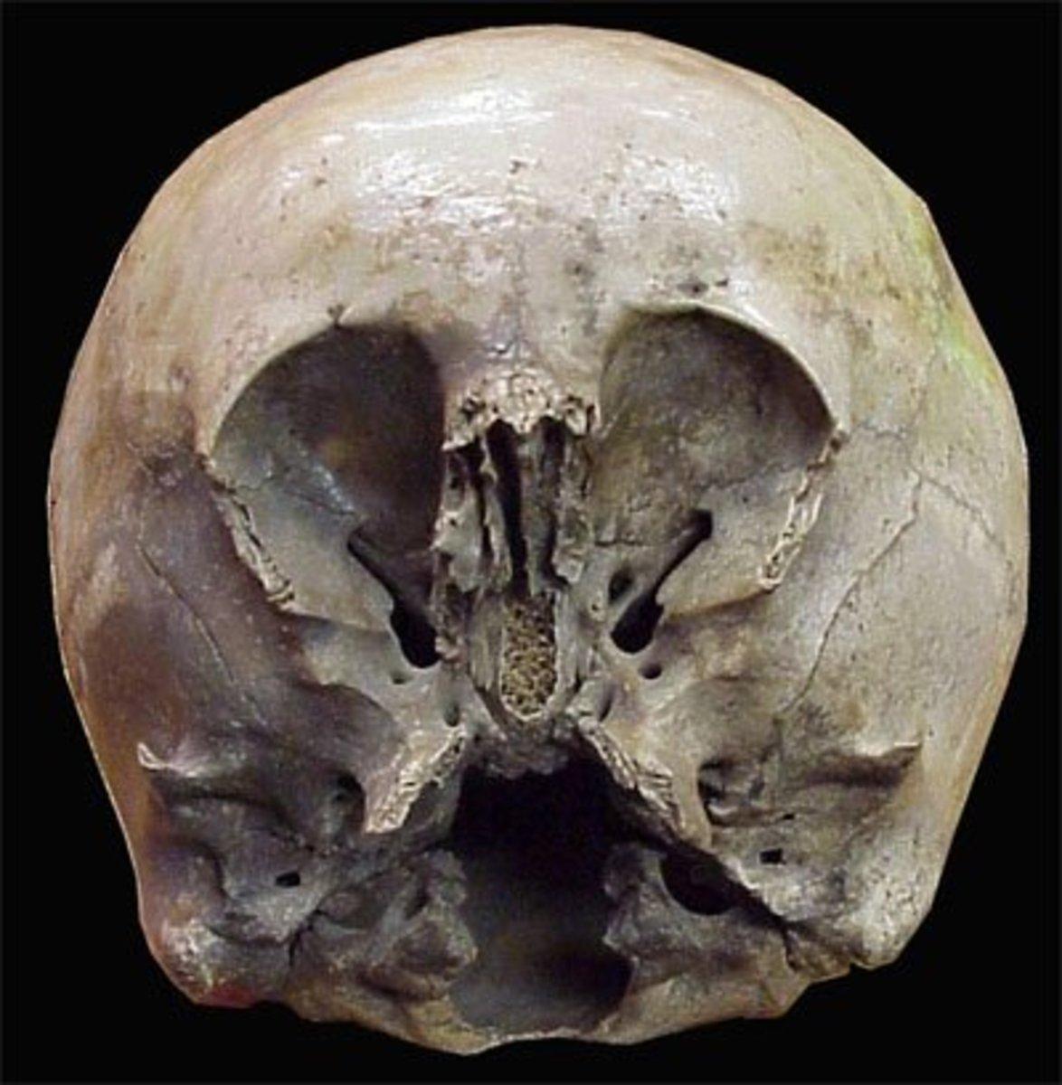 Courtesy Loyd Pye     Star Child Skull