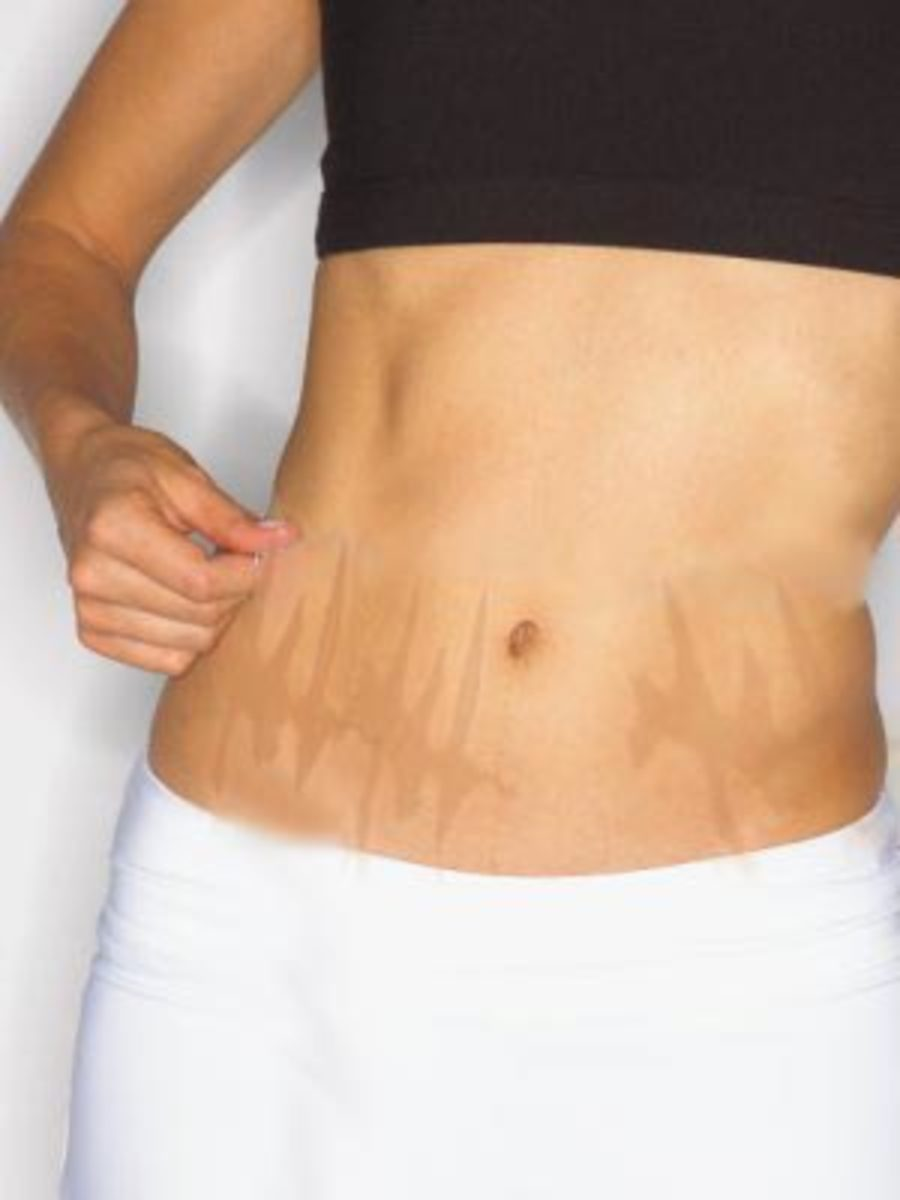 Get Rid of Your Stretch Marks Naturally