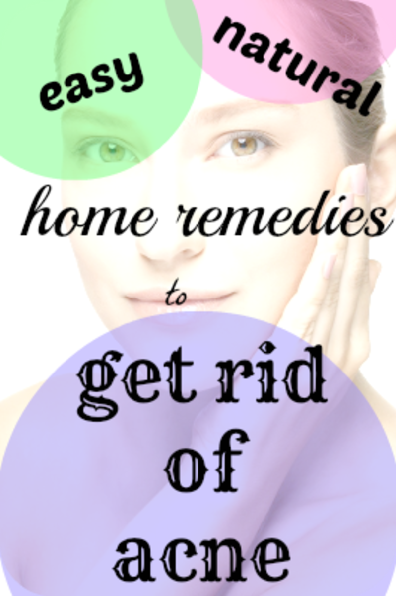 how to get rid of acne spots home remedies