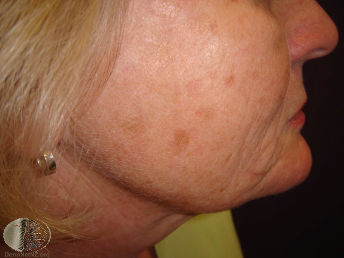 Snile lentigines on an older woman's face.
