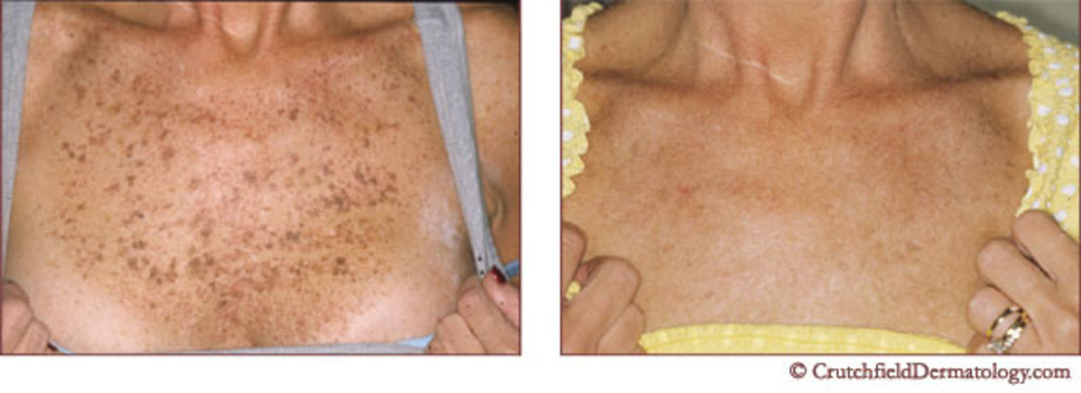 Liver spots before and after treatment.