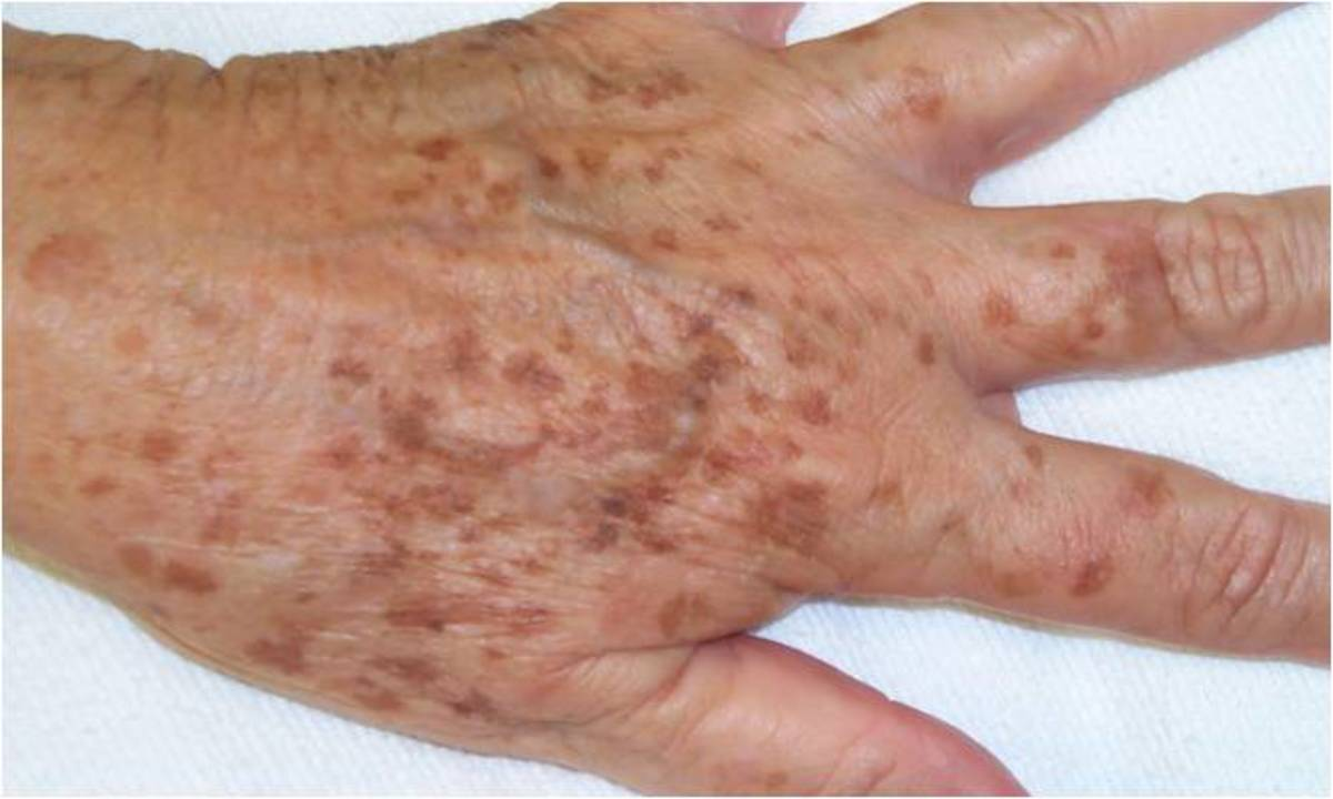 Liver spots on a hand.