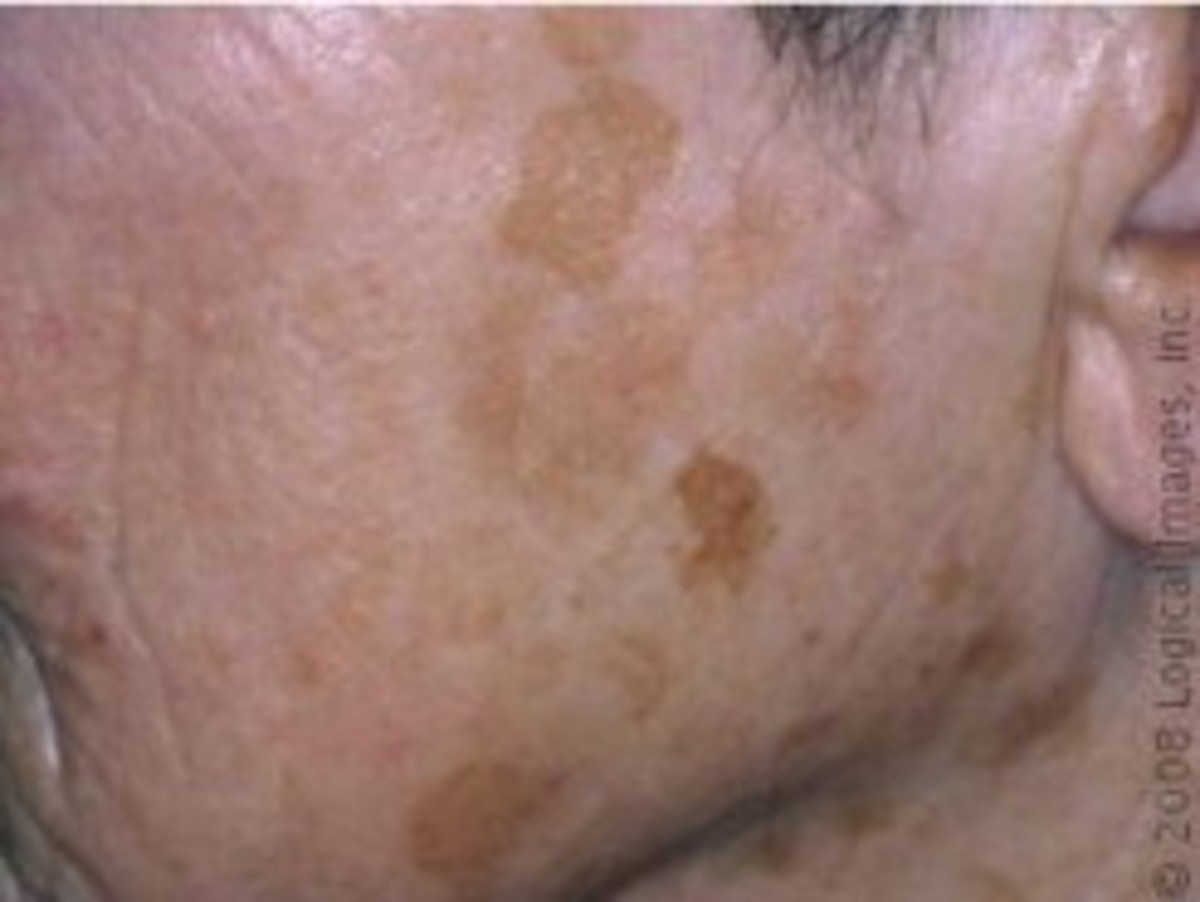 Large liver spots on a cheek.