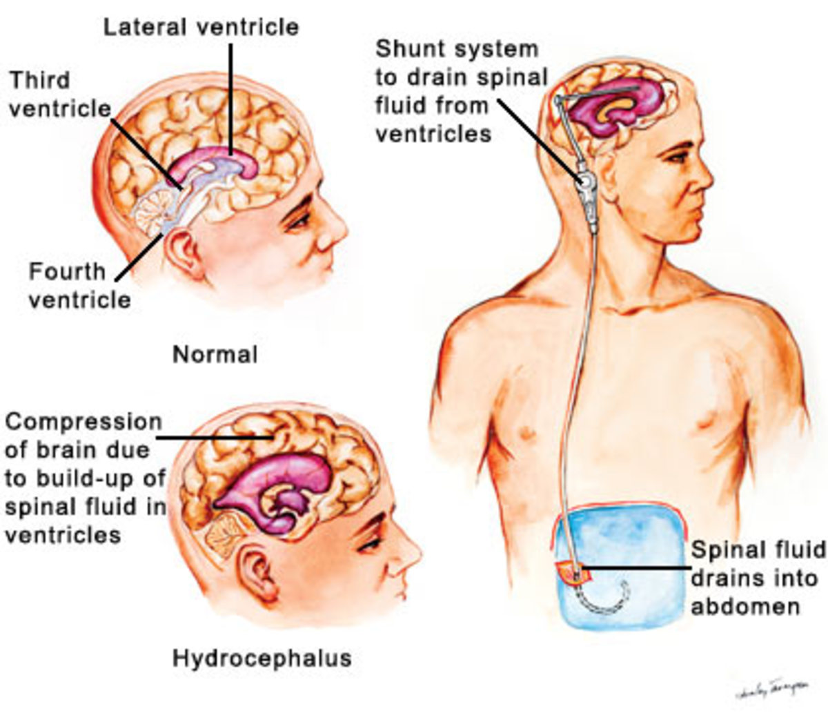 Graphic showing normal pressure hydrocephalus