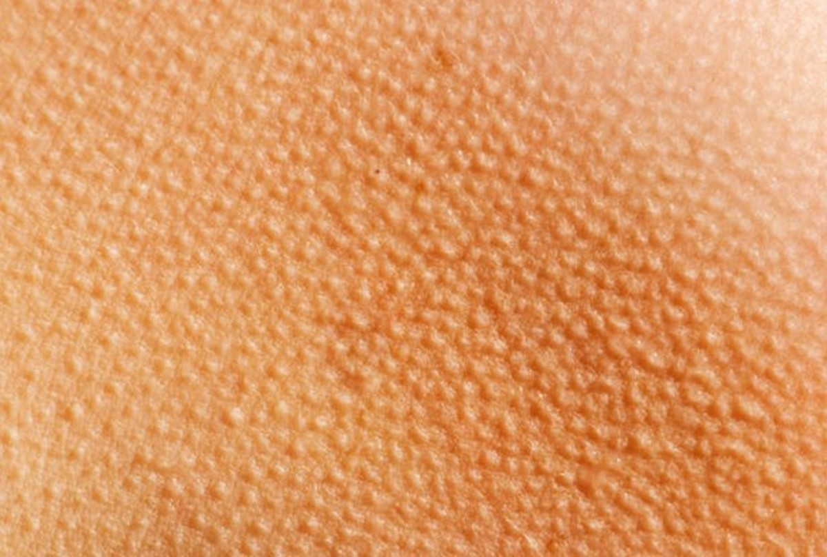 Keratosis Pilaris - Pictures, Treatment, Symptoms and Causes | HubPages