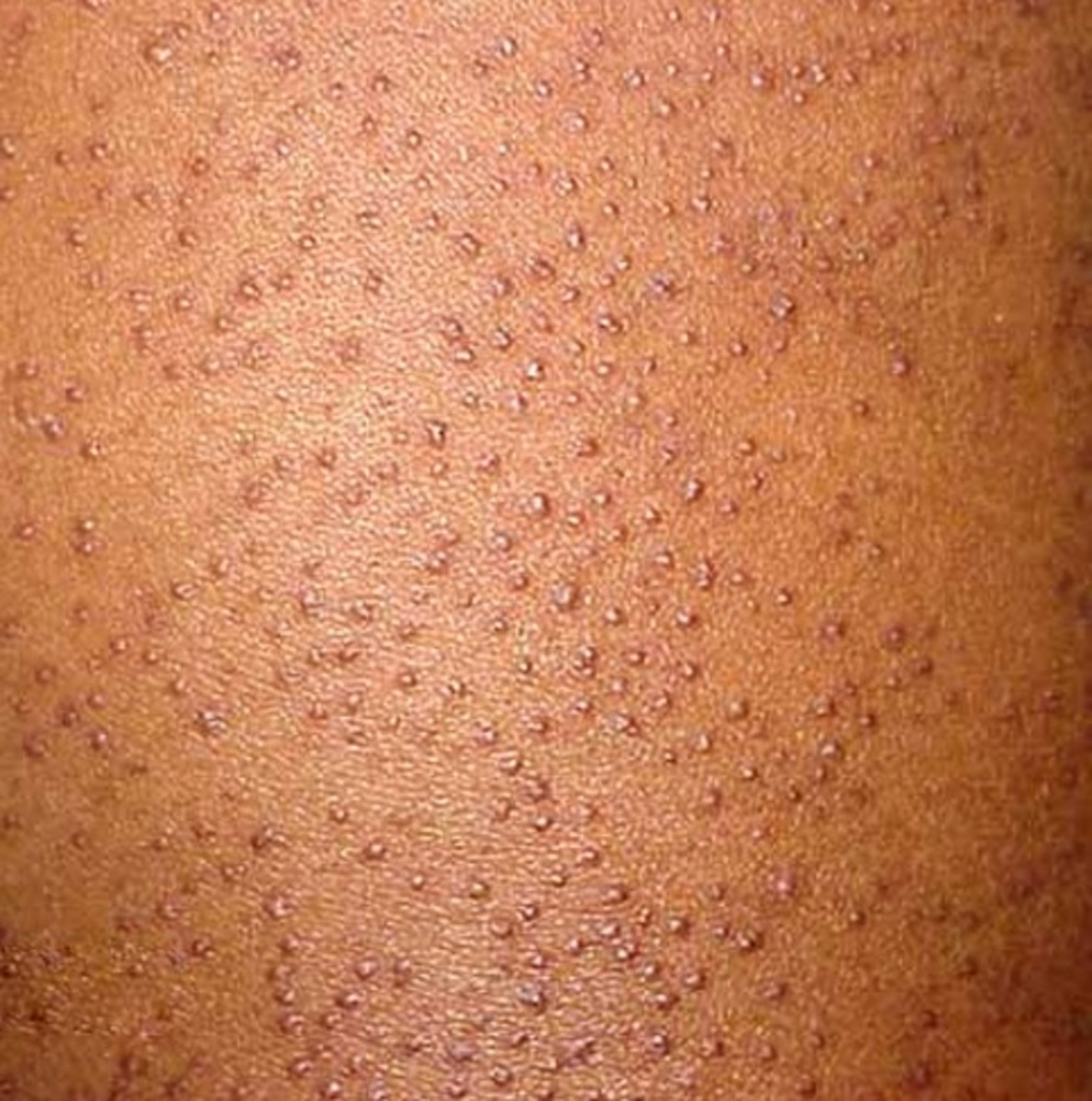 keratosis-pilaris-pictures-treatment-symptoms-and-causes